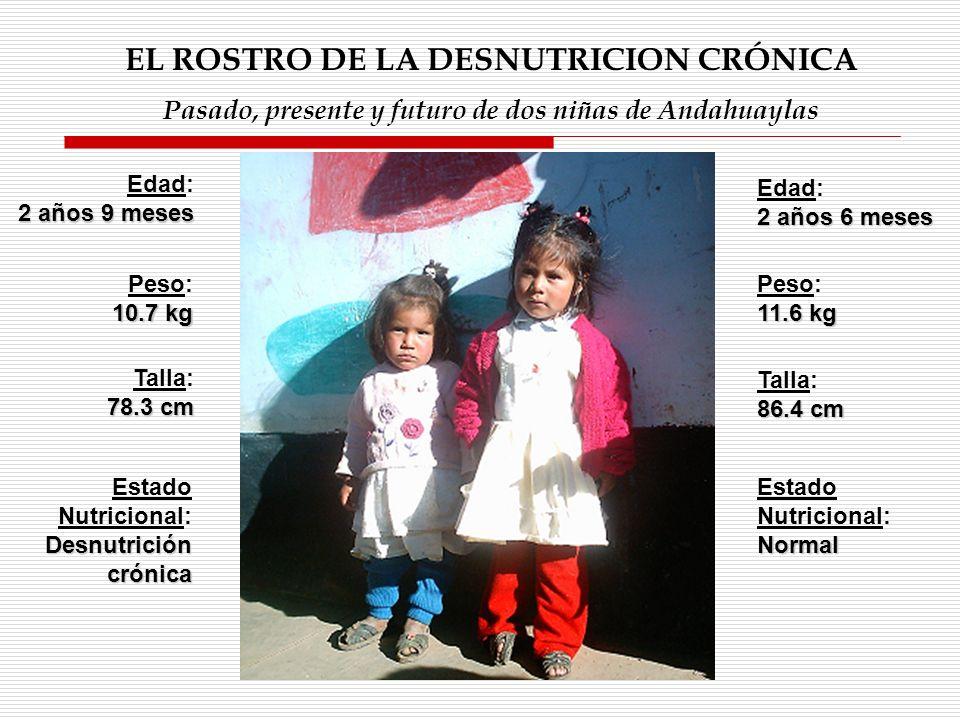 EL ROSTRO DE LA DESNUTRICION CRÓNICA