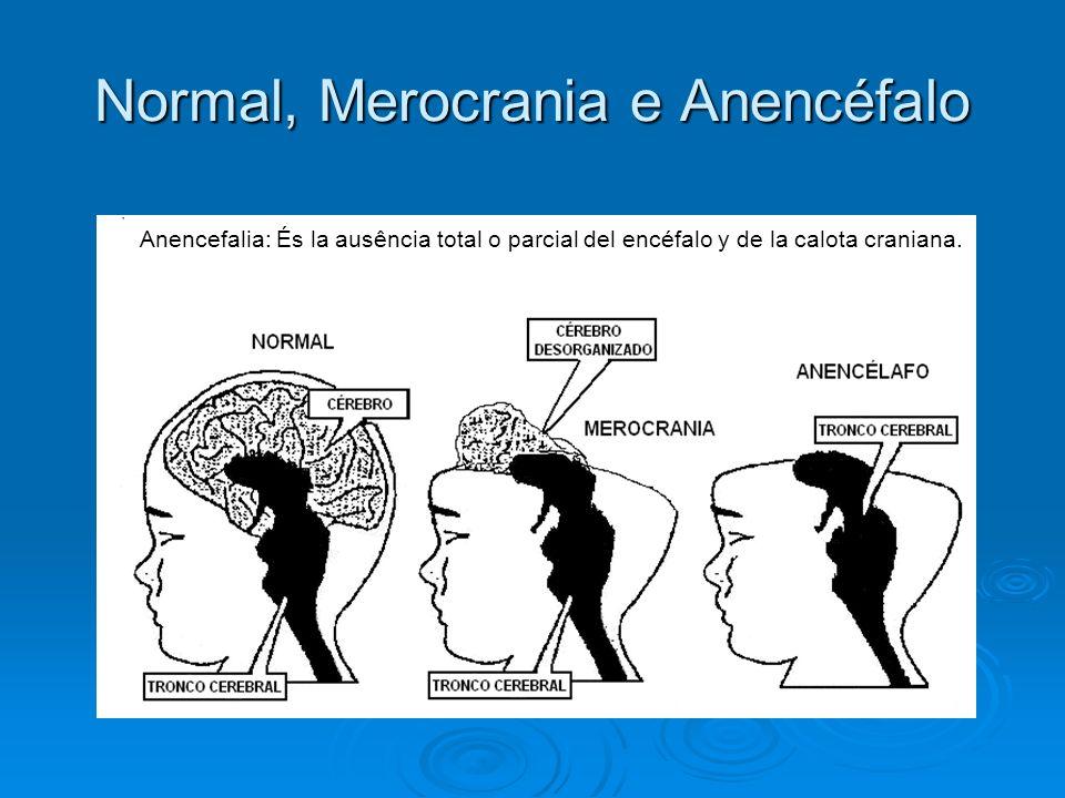 Normal, Merocrania e Anencéfalo