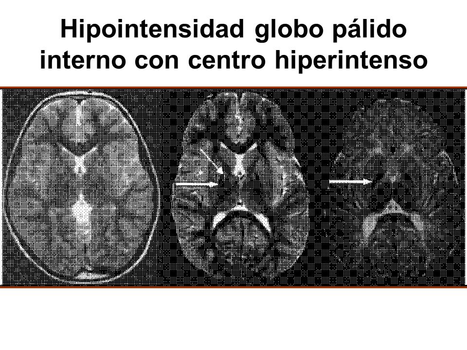 Hipointensidad globo pálido interno con centro hiperintenso