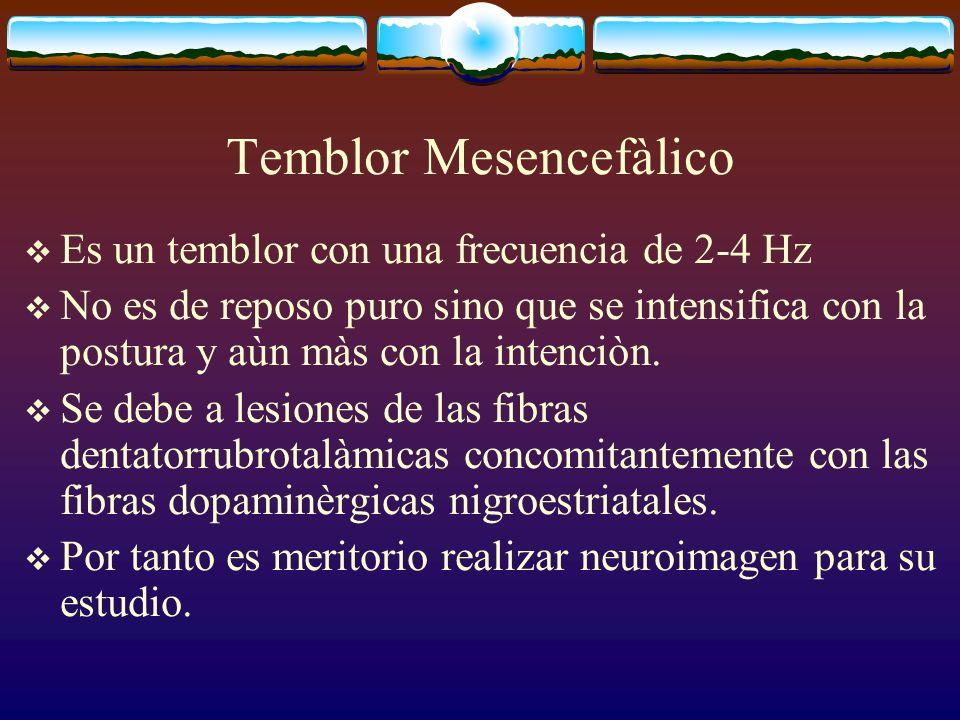 Temblor Mesencefàlico