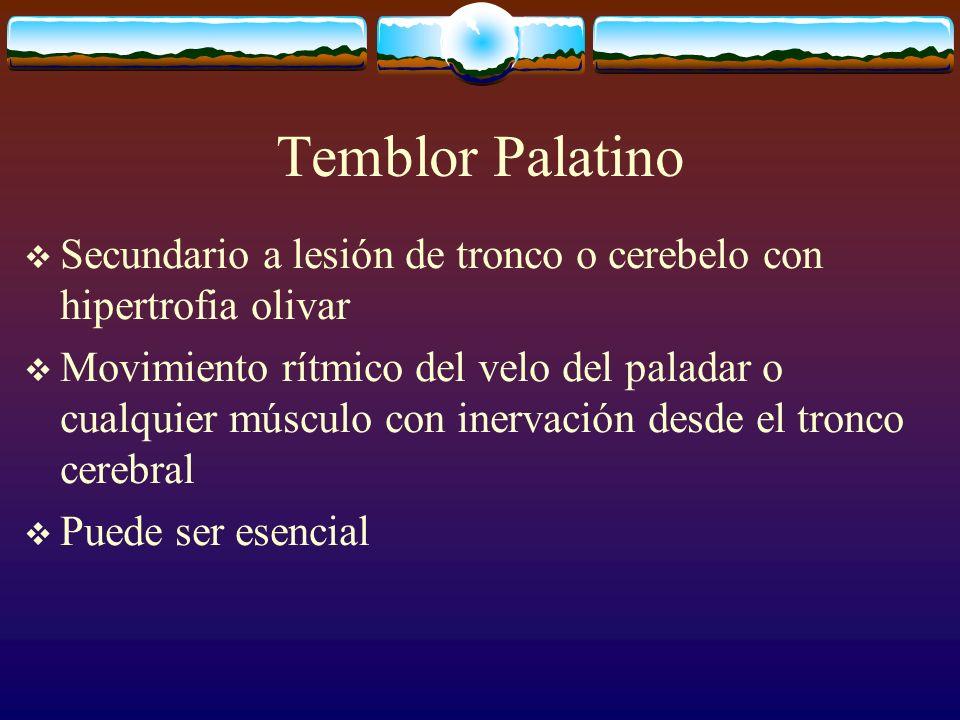 Temblor Palatino Secundario a lesión de tronco o cerebelo con hipertrofia olivar.