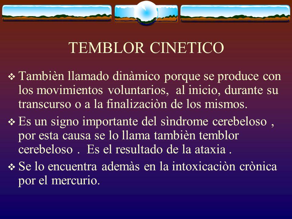 TEMBLOR CINETICO