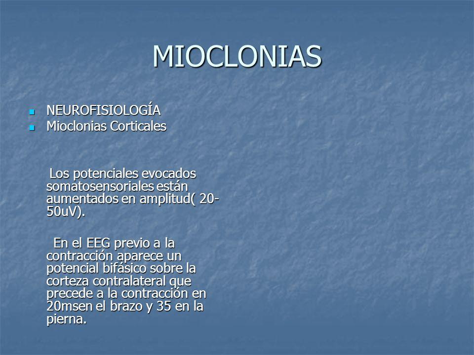 MIOCLONIAS NEUROFISIOLOGÍA Mioclonias Corticales