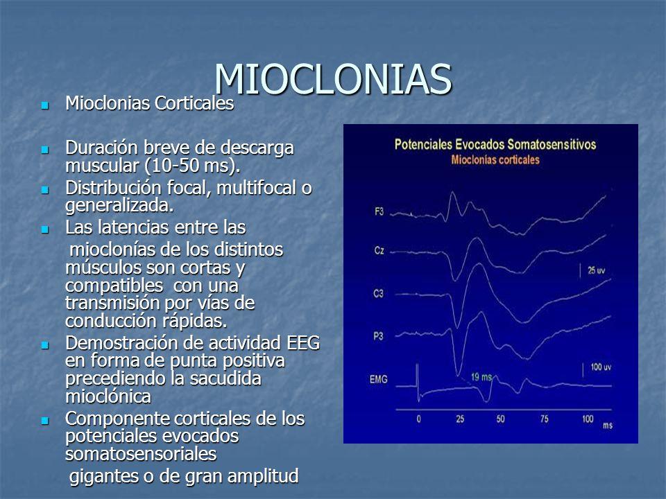 MIOCLONIAS Mioclonias Corticales