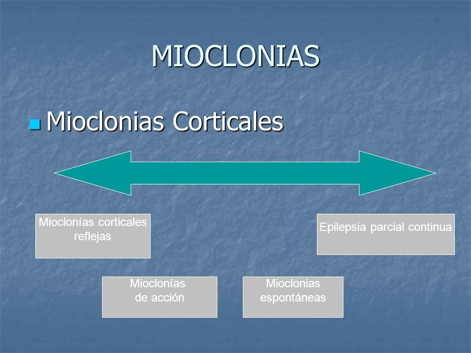 MIOCLONIAS Mioclonias Corticales Mioclonías corticales reflejas