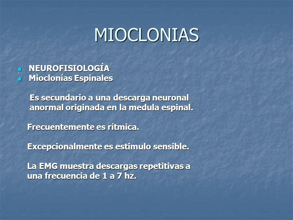 MIOCLONIAS NEUROFISIOLOGÍA Mioclonías Espinales
