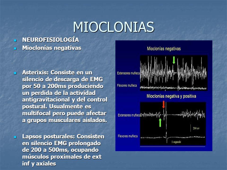 MIOCLONIAS NEUROFISIOLOGÍA Mioclonías negativas