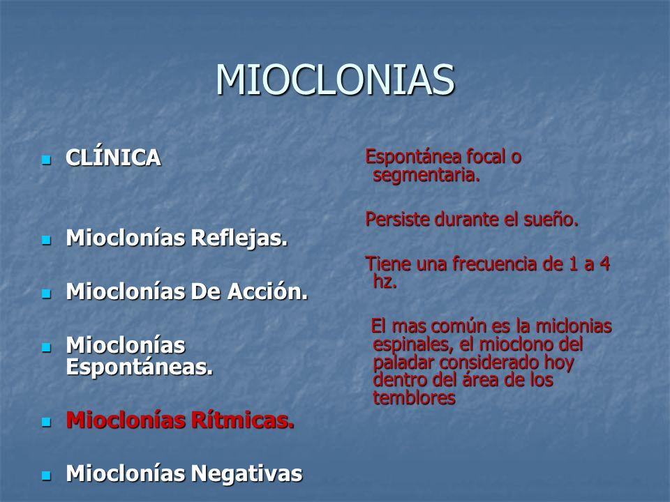 MIOCLONIAS CLÍNICA Mioclonías Reflejas. Mioclonías De Acción.