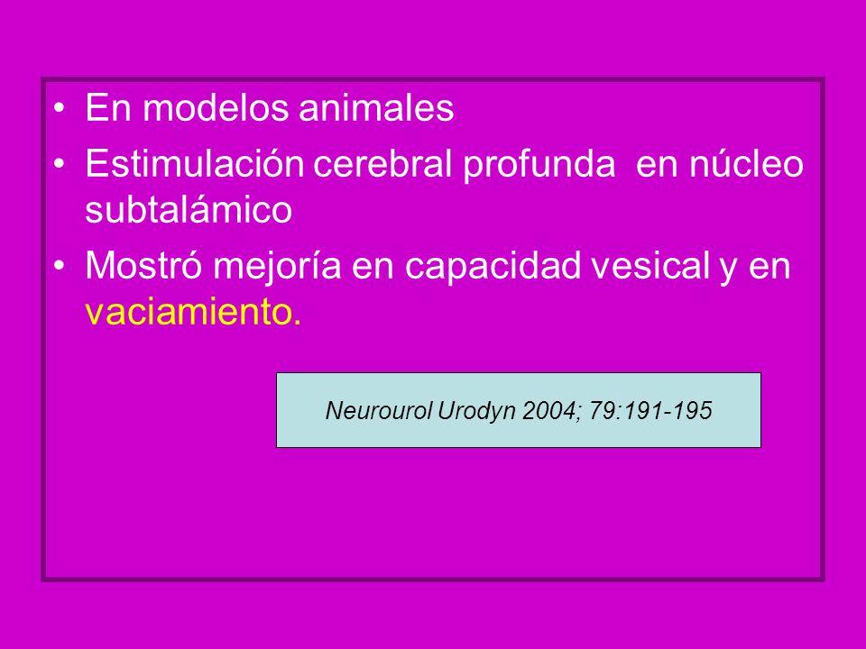 Estimulación cerebral profunda en núcleo subtalámico
