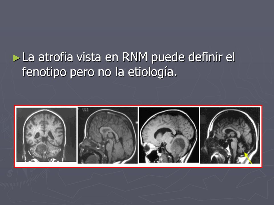 La atrofia vista en RNM puede definir el fenotipo pero no la etiología.