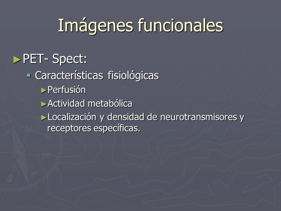 Imágenes funcionales PET- Spect: Características fisiológicas
