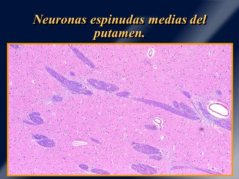 Neuronas espinudas medias del putamen.