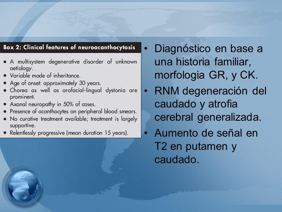 Diagnóstico en base a una historia familiar, morfologia GR, y CK.