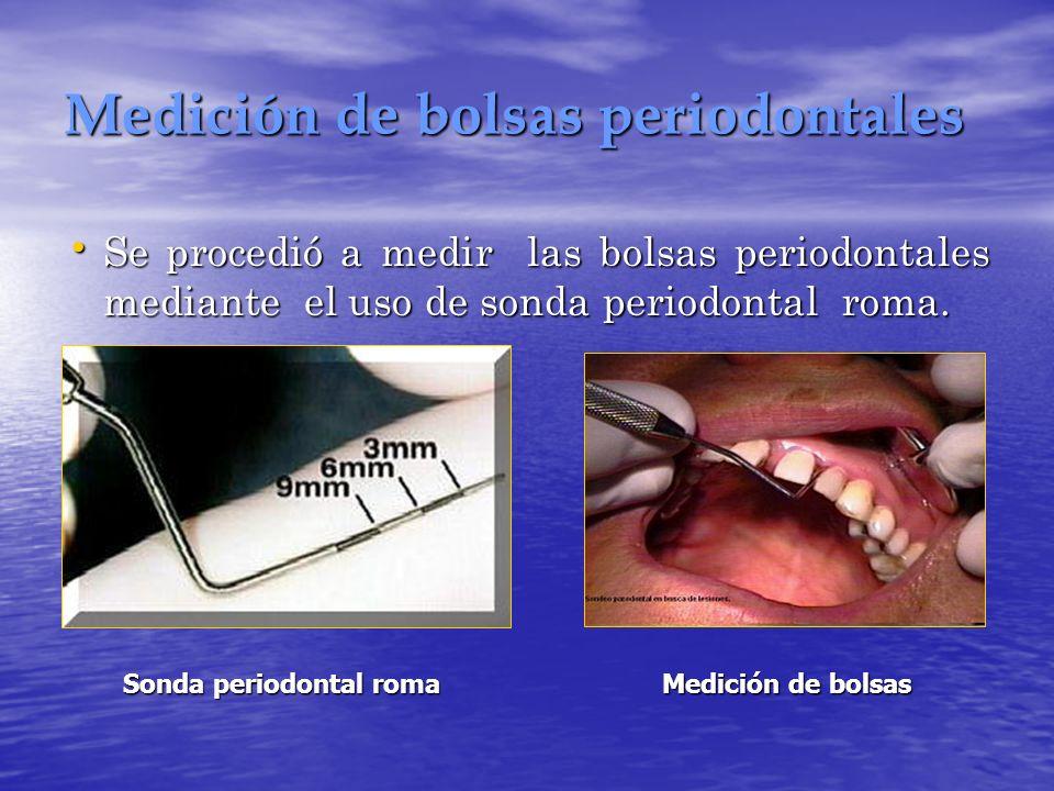 Medición de bolsas periodontales