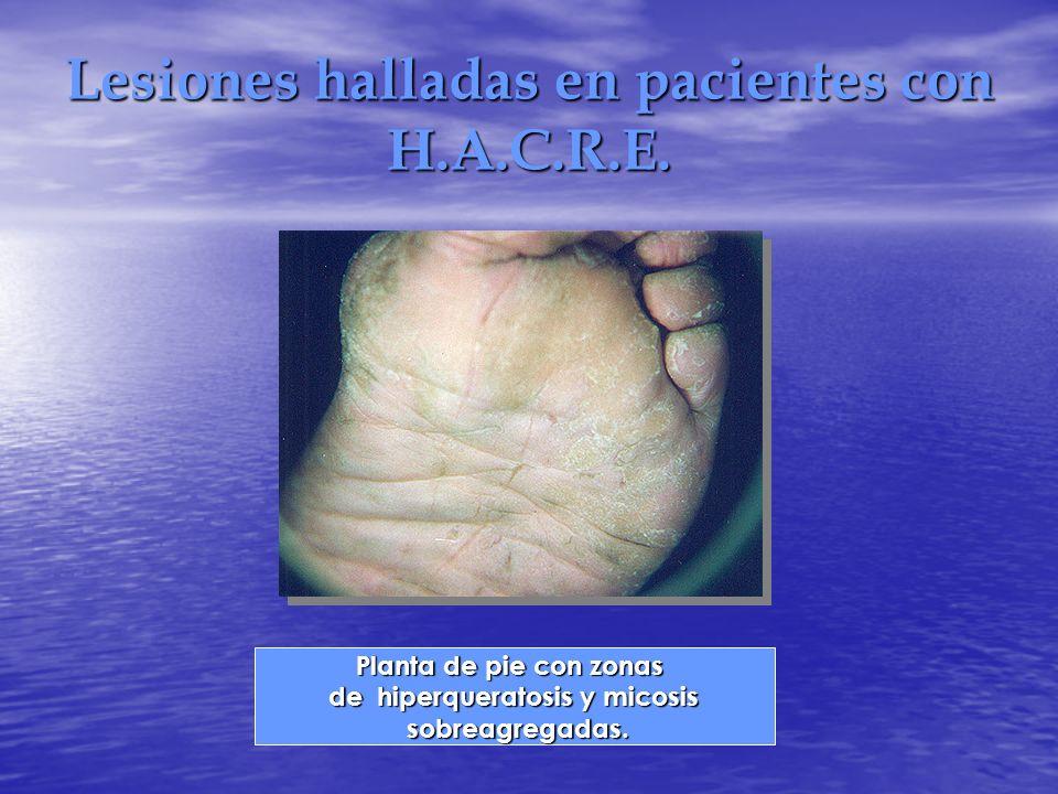 Lesiones halladas en pacientes con H.A.C.R.E.