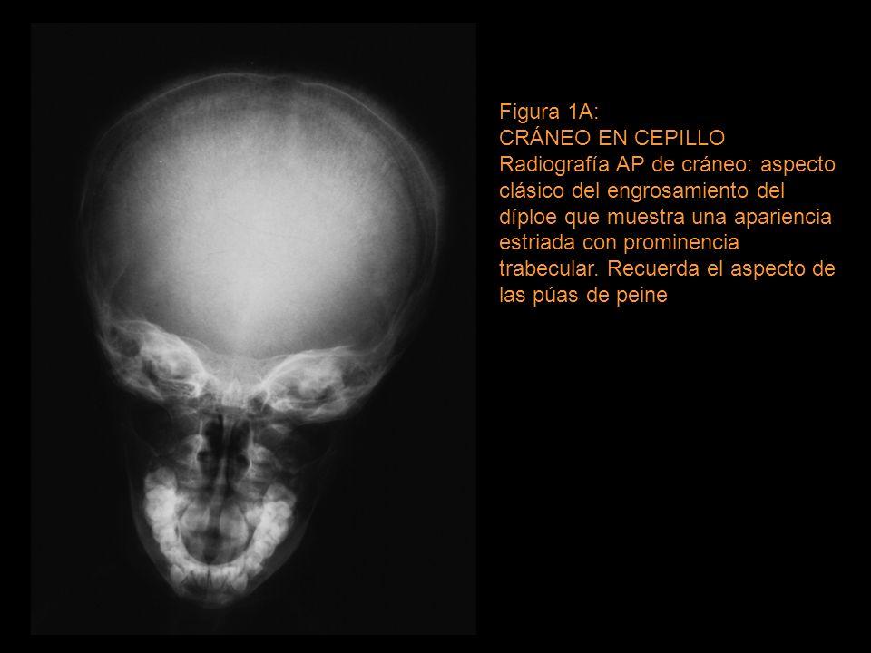 Figura 1A: CRÁNEO EN CEPILLO - ppt video online descargar