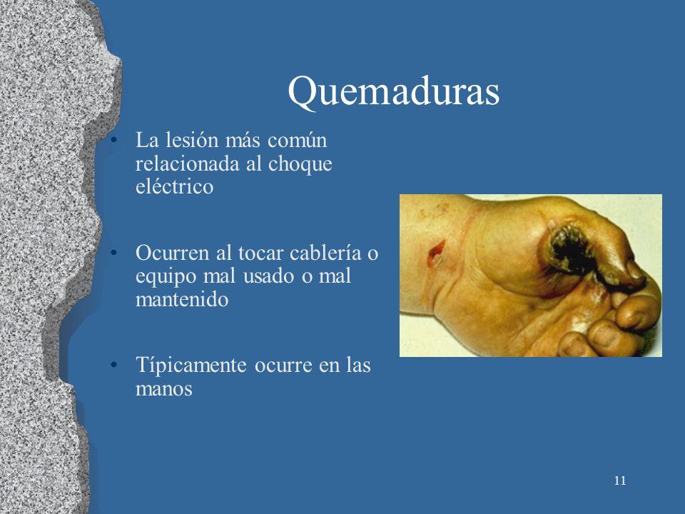 Quemaduras La lesión más común relacionada al choque eléctrico