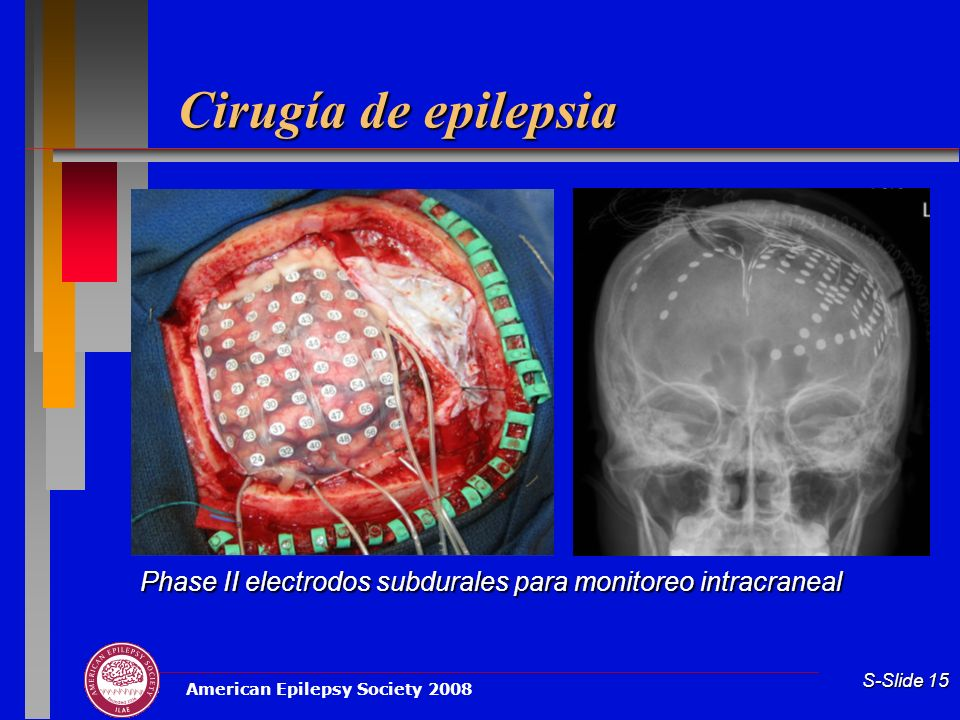 Cirugía de epilepsia G. Phase II Video/EEG monitoreo con electrodos intracraneales.