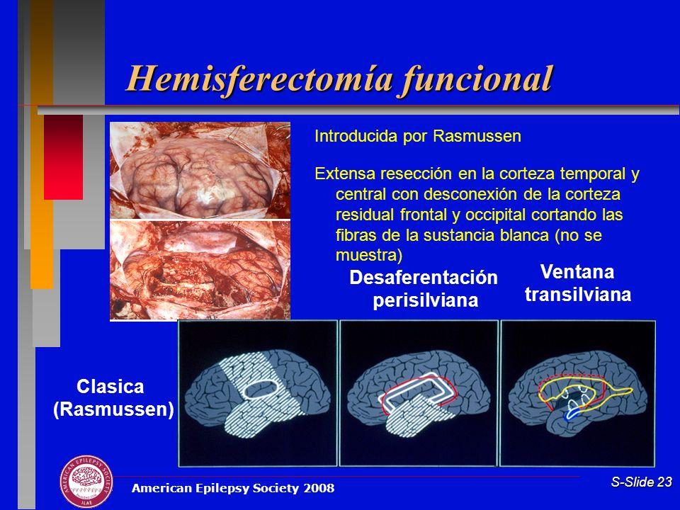 Hemisferectomía funcional