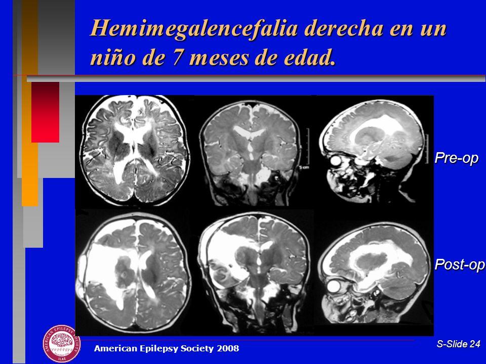 Hemimegalencefalia derecha en un niño de 7 meses de edad.