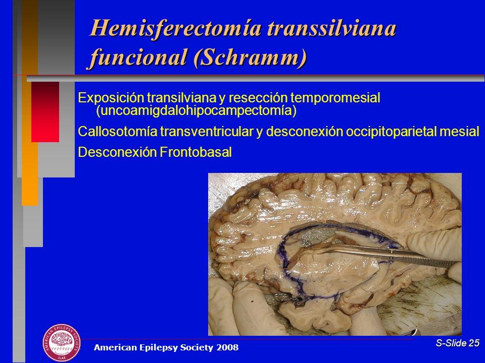 Hemisferectomía transsilviana funcional (Schramm)
