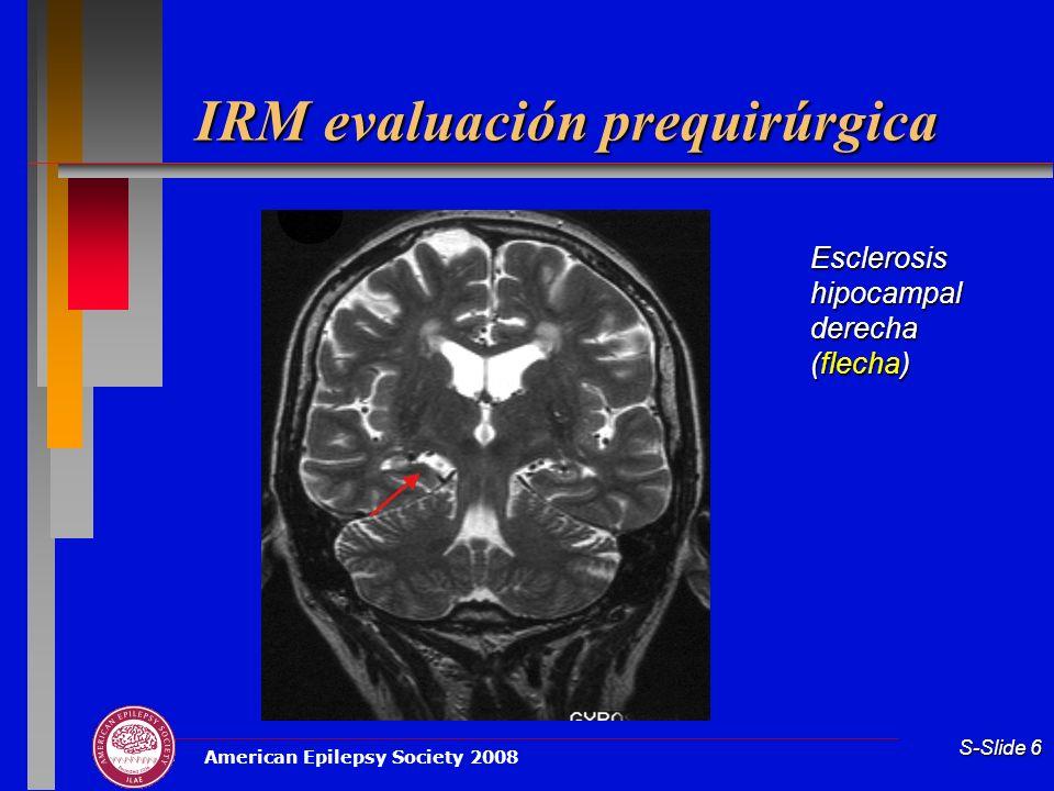 IRM evaluación prequirúrgica