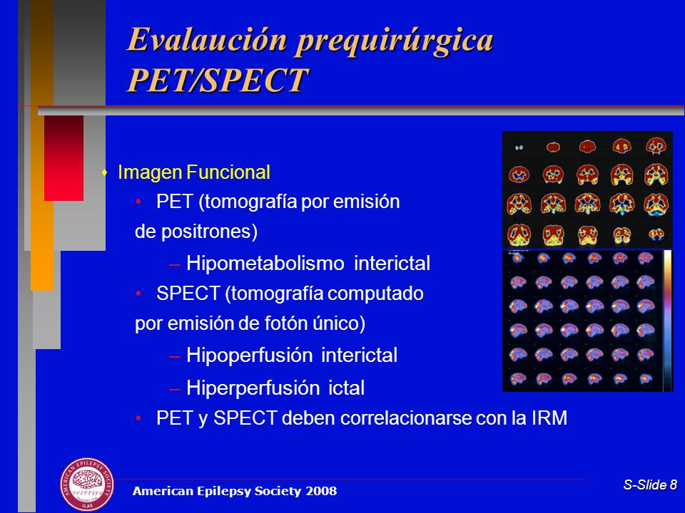 Evalaución prequirúrgica PET/SPECT