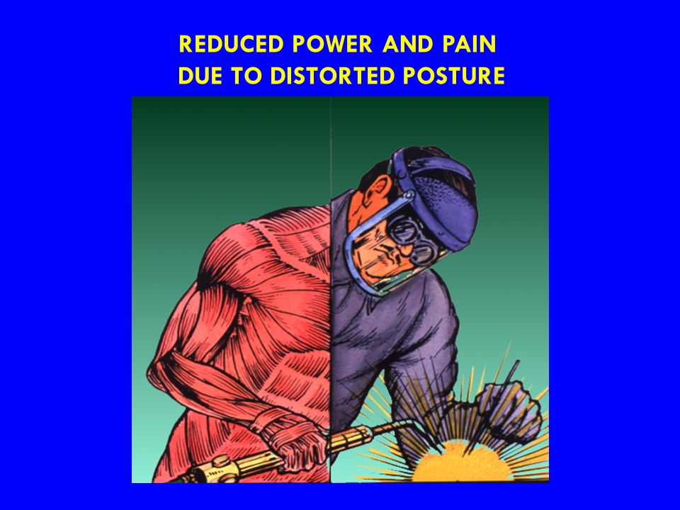 DUE TO DISTORTED POSTURE