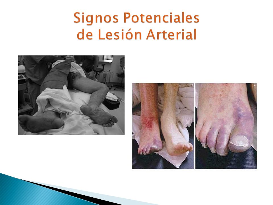 Signos Potenciales de Lesión Arterial