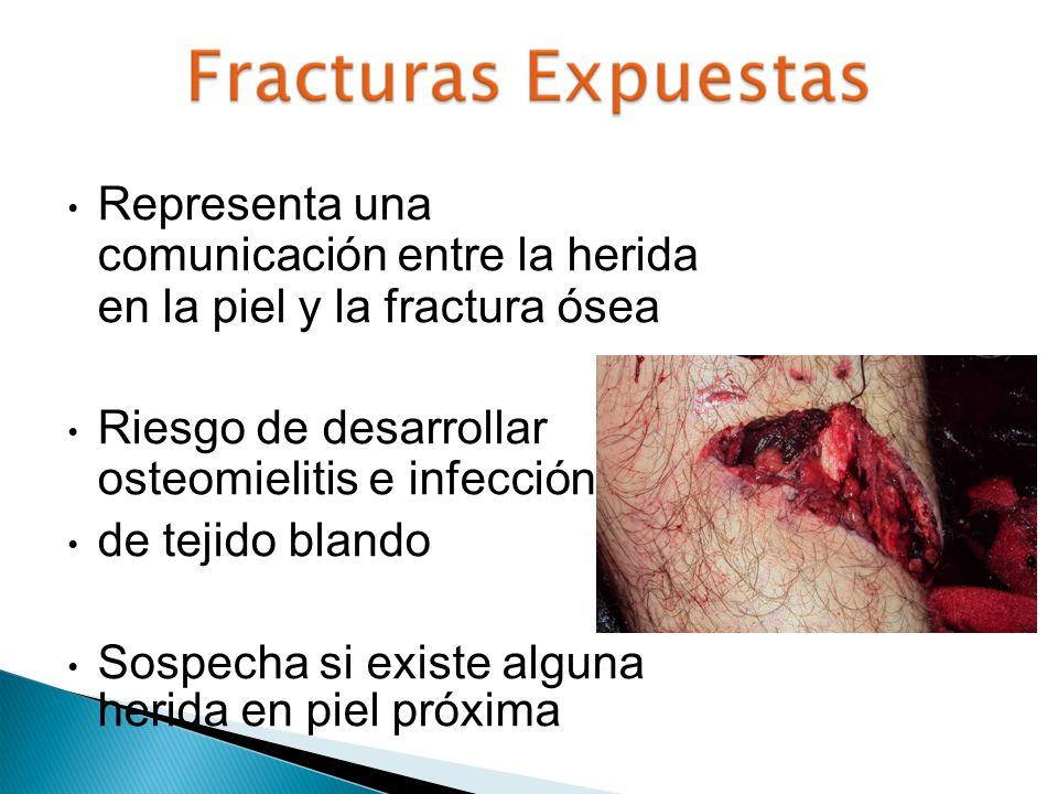 Representa una comunicación entre la herida en la piel y la fractura ósea