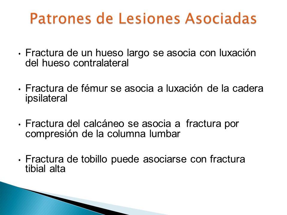 Fractura de un hueso largo se asocia con luxación del hueso contralateral