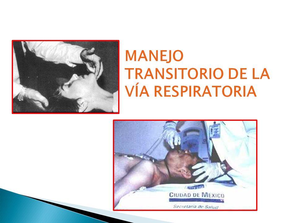 MANEJO TRANSITORIO DE LA VÍA RESPIRATORIA