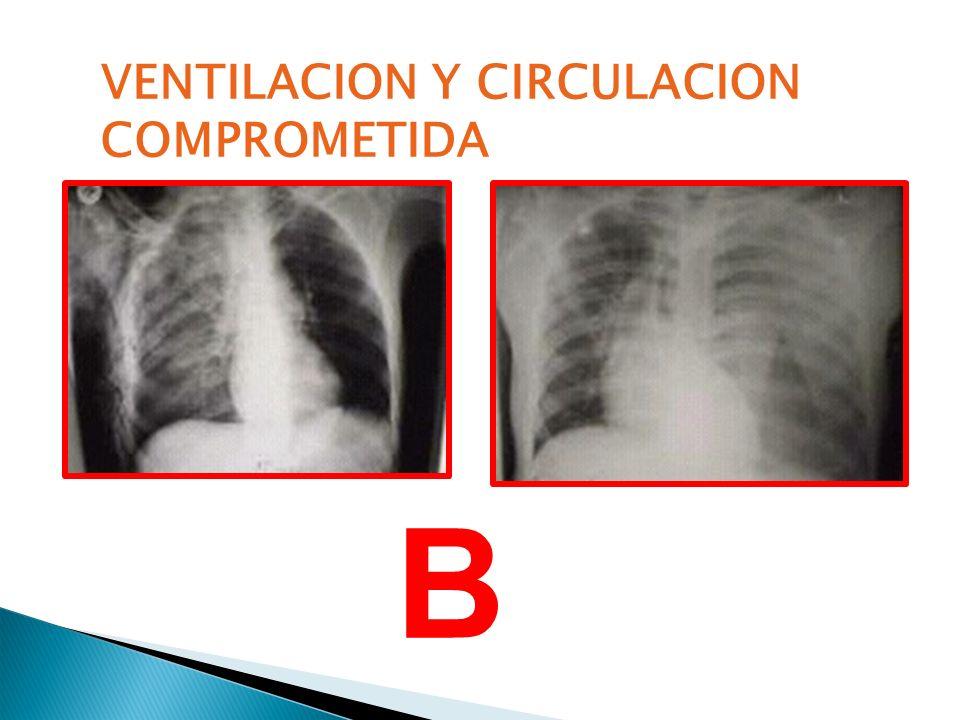 VENTILACION Y CIRCULACION
