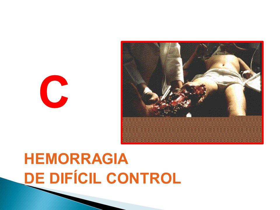 C HEMORRAGIA DE DIFÍCIL CONTROL