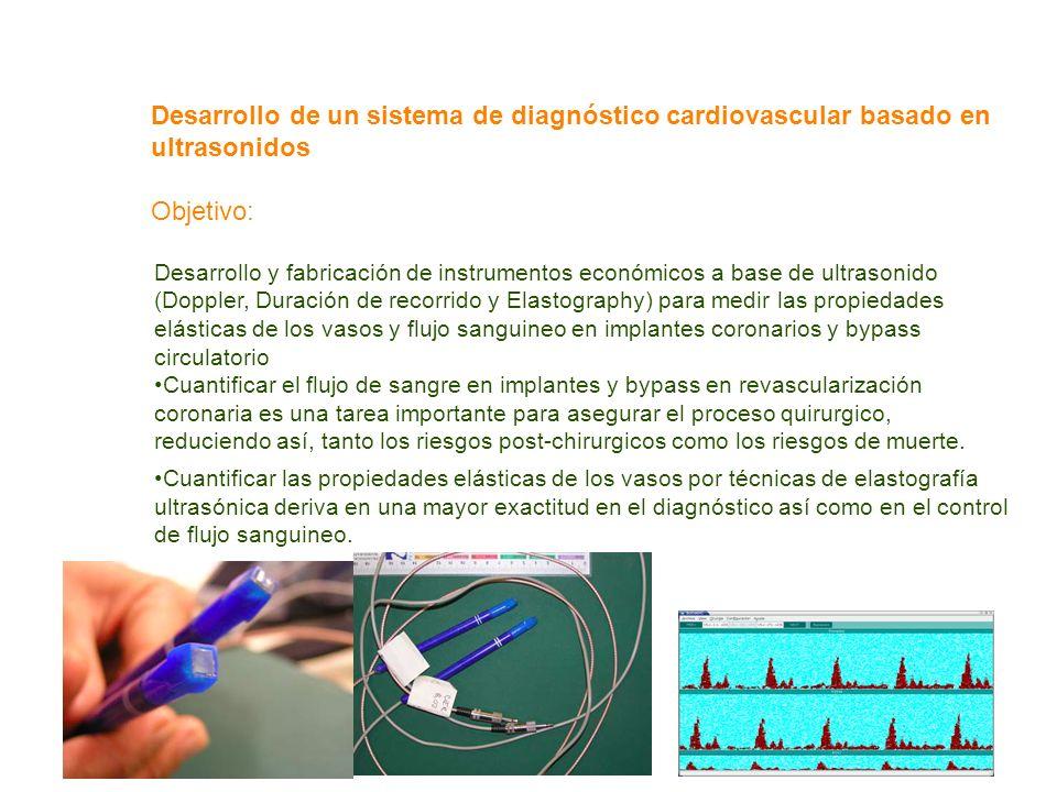 Desarrollo de un sistema de diagnóstico cardiovascular basado en