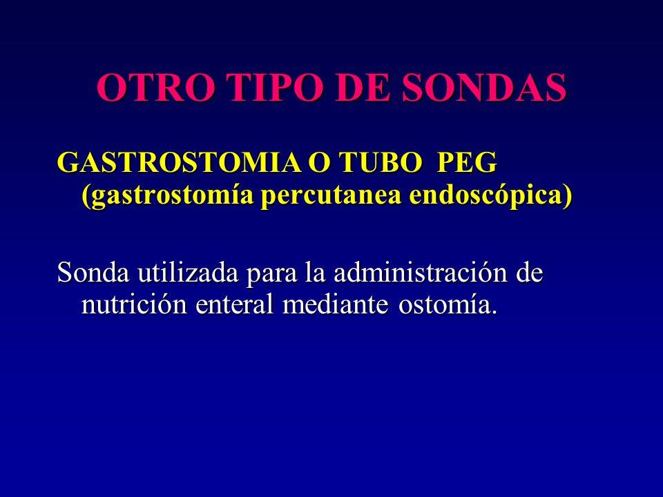 OTRO TIPO DE SONDAS GASTROSTOMIA O TUBO PEG (gastrostomía percutanea endoscópica)