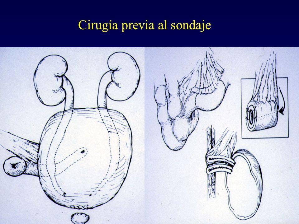 Cirugía previa al sondaje