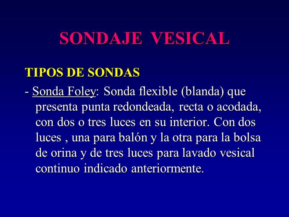 SONDAJE VESICAL TIPOS DE SONDAS