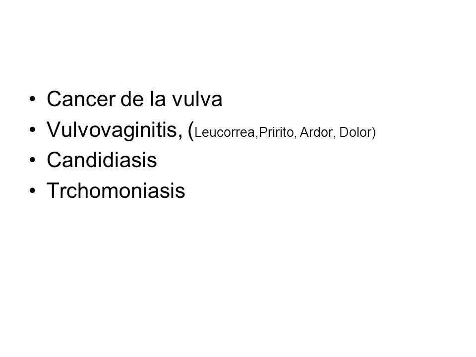 Cancer de la vulva Vulvovaginitis, (Leucorrea,Pririto, Ardor, Dolor) Candidiasis Trchomoniasis