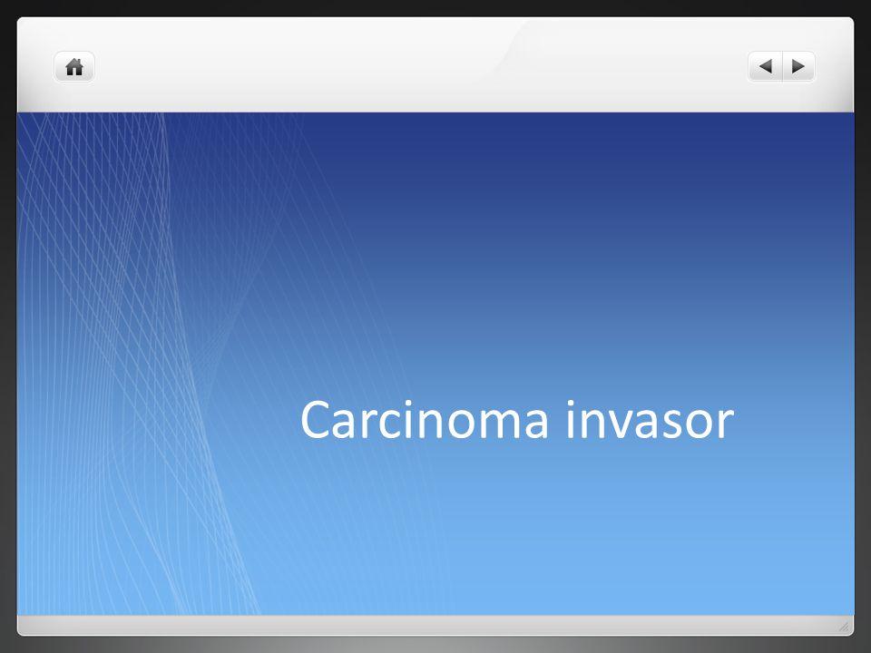 Carcinoma invasor