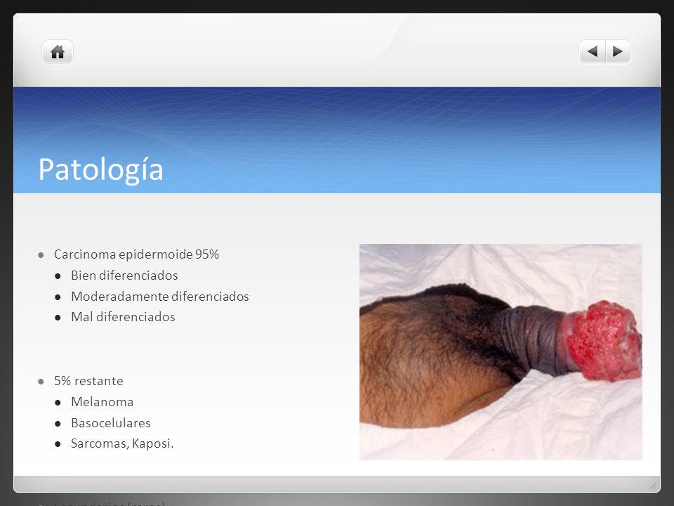 Patología Carcinoma epidermoide 95% Bien diferenciados