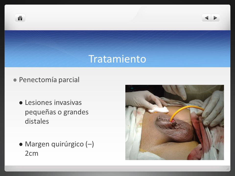 Tratamiento Penectomía parcial