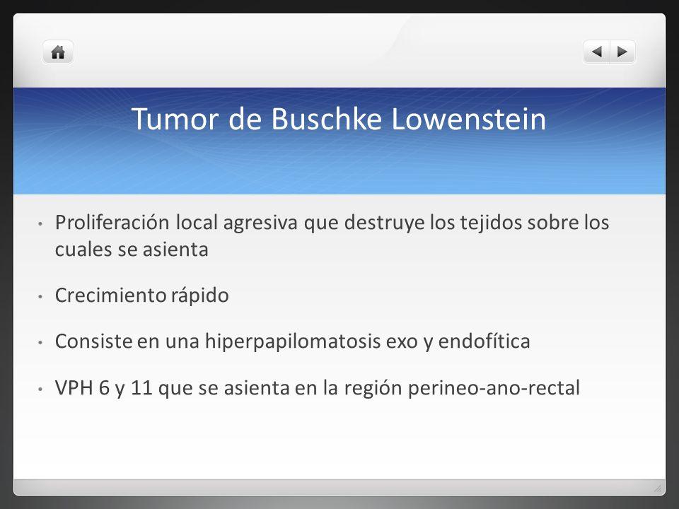 Tumor de Buschke Lowenstein