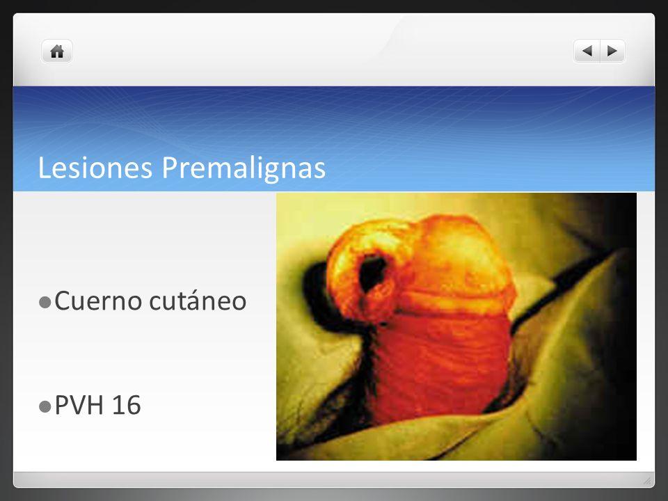 Lesiones Premalignas Cuerno cutáneo PVH 16