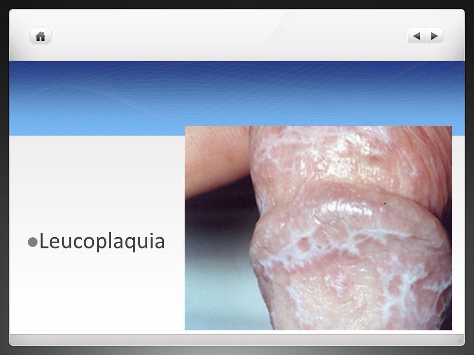 Leucoplaquia