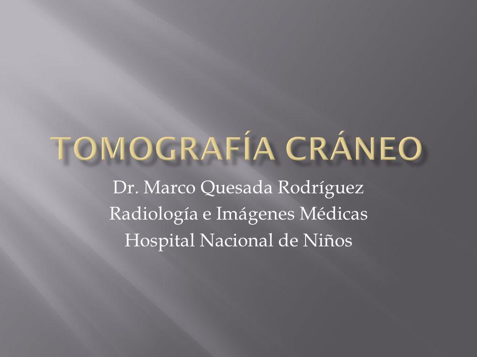 Tomografía Cráneo Dr. Marco Quesada Rodríguez - ppt descargar