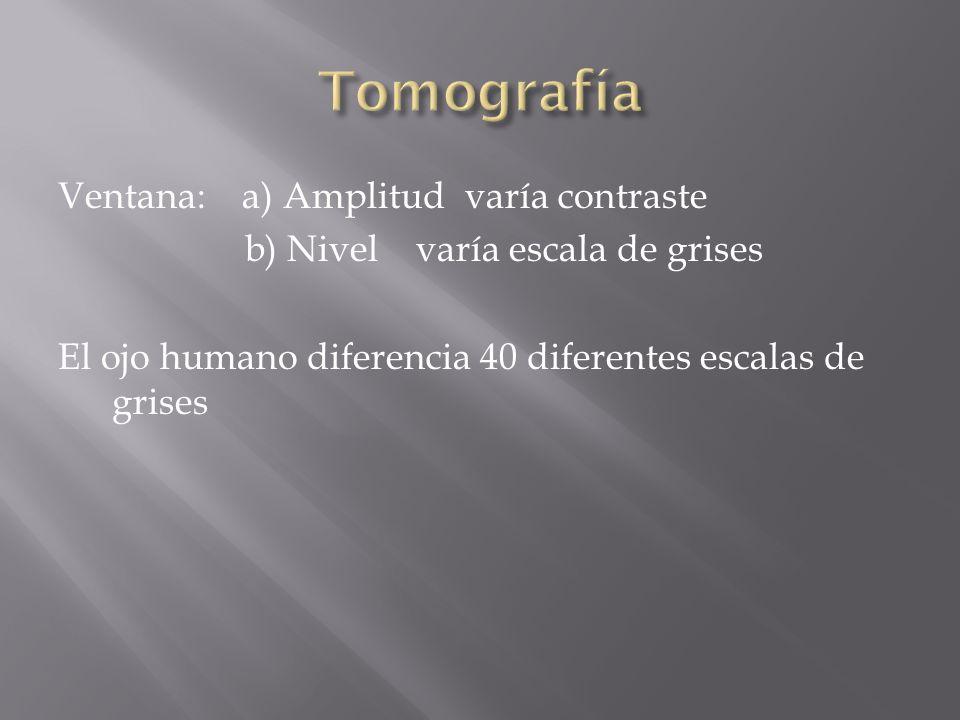 tomografa ventana a amplitud vara contraste b nivel vara escala de grises el ojo humano diferencia diferentes escalas de grises