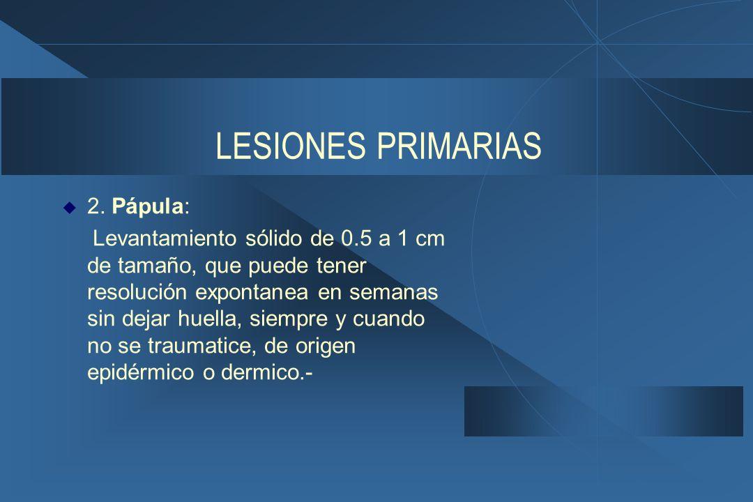 LESIONES PRIMARIAS 2. Pápula: