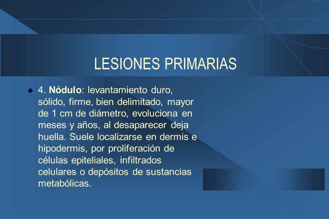 LESIONES PRIMARIAS