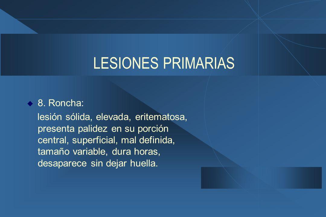 LESIONES PRIMARIAS 8. Roncha: